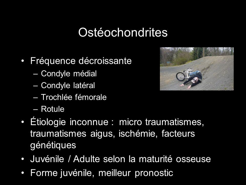 Ostéochondrites Fréquence décroissante –Condyle médial –Condyle latéral –Trochlée fémorale –Rotule Étiologie inconnue : micro traumatismes, traumatism