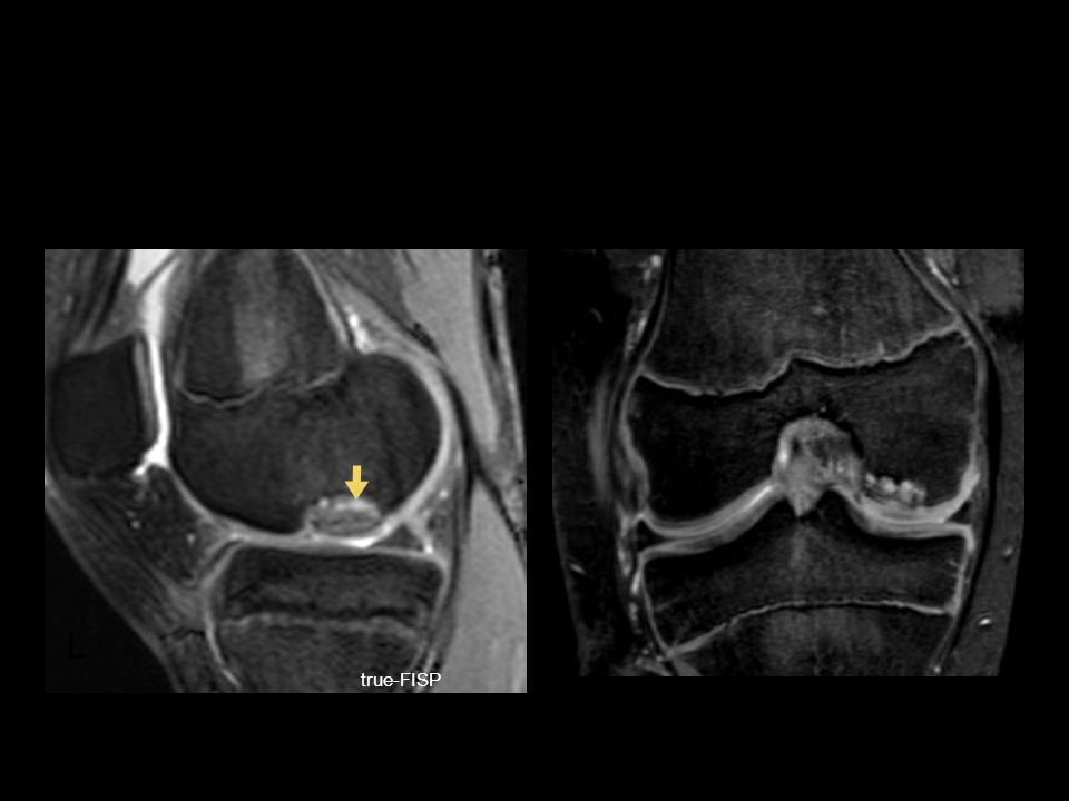 osteochondritis dissecans WARM UPACUTE INJURIESCHRONIC INJURIESCOOL DOWN true-FISP L