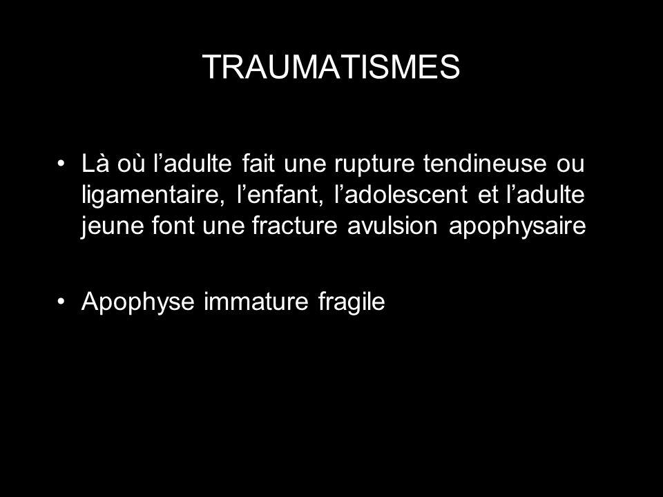 TRAUMATISMES Là où ladulte fait une rupture tendineuse ou ligamentaire, lenfant, ladolescent et ladulte jeune font une fracture avulsion apophysaire A