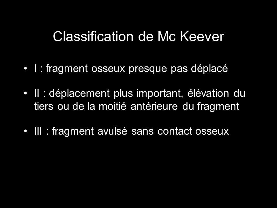 Classification de Mc Keever I : fragment osseux presque pas déplacé II : déplacement plus important, élévation du tiers ou de la moitié antérieure du