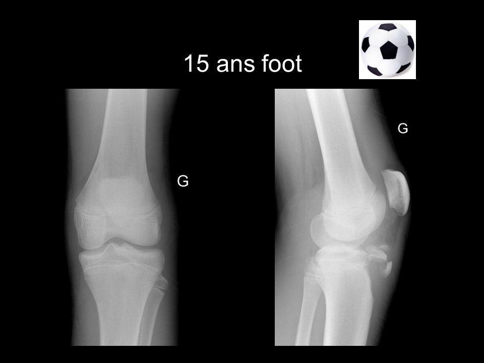 15 ans foot