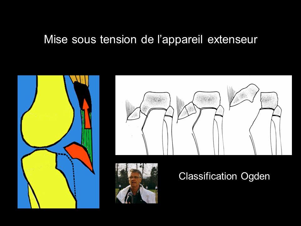 Classification Ogden Mise sous tension de lappareil extenseur