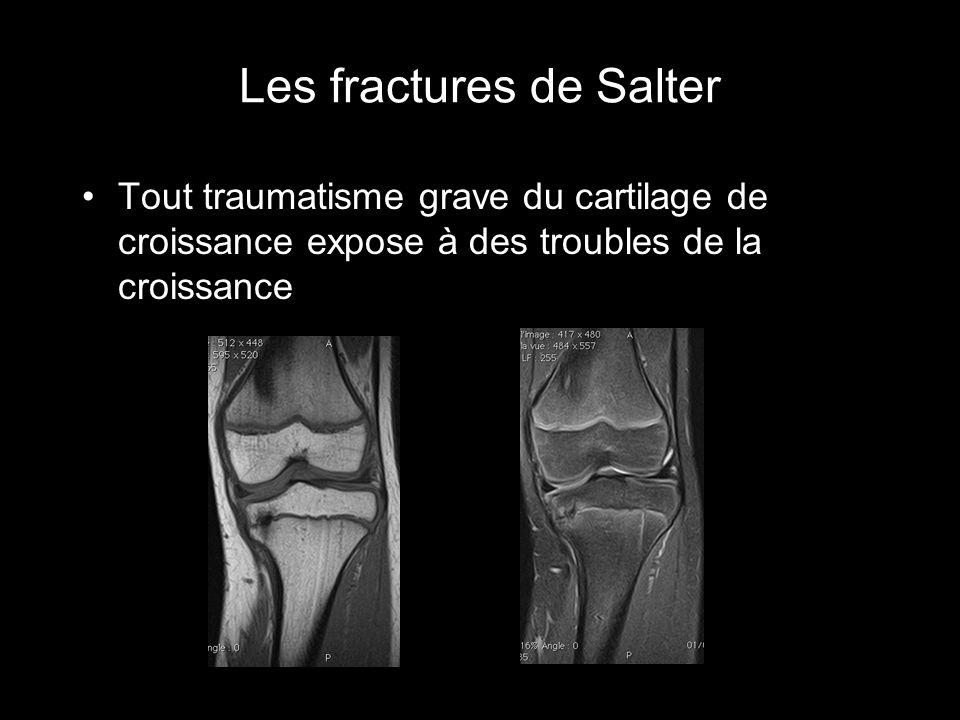 Les fractures de Salter Tout traumatisme grave du cartilage de croissance expose à des troubles de la croissance