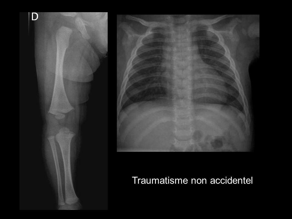 Traumatisme non accidentel