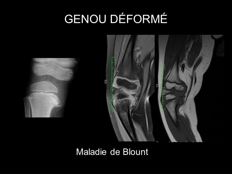 GENOU DÉFORMÉ Maladie de Blount
