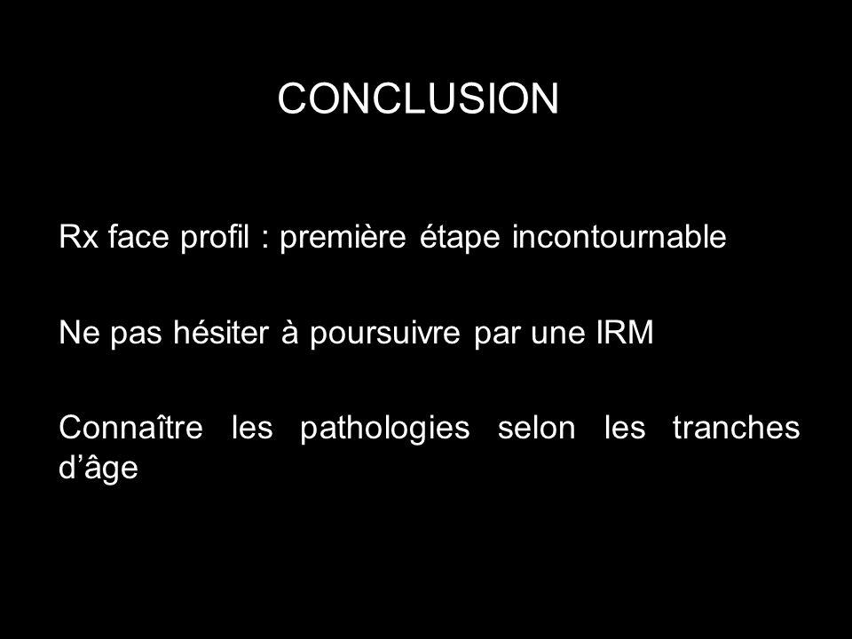 CONCLUSION Rx face profil : première étape incontournable Ne pas hésiter à poursuivre par une IRM Connaître les pathologies selon les tranches dâge