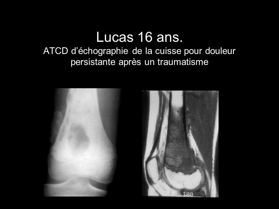 Lucas 16 ans. ATCD déchographie de la cuisse pour douleur persistante après un traumatisme