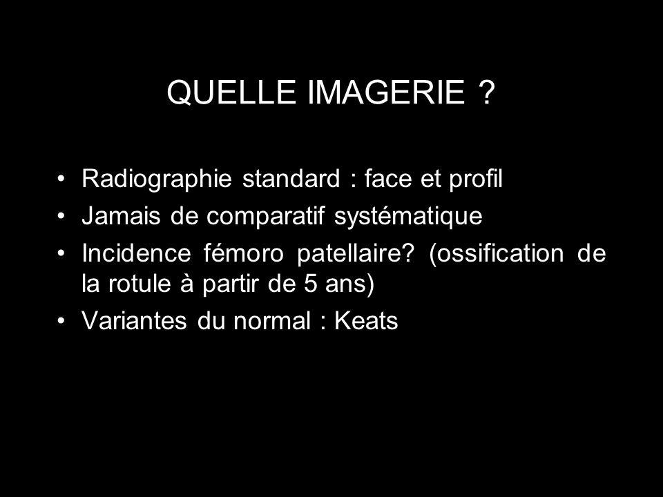 QUELLE IMAGERIE ? Radiographie standard : face et profil Jamais de comparatif systématique Incidence fémoro patellaire? (ossification de la rotule à p