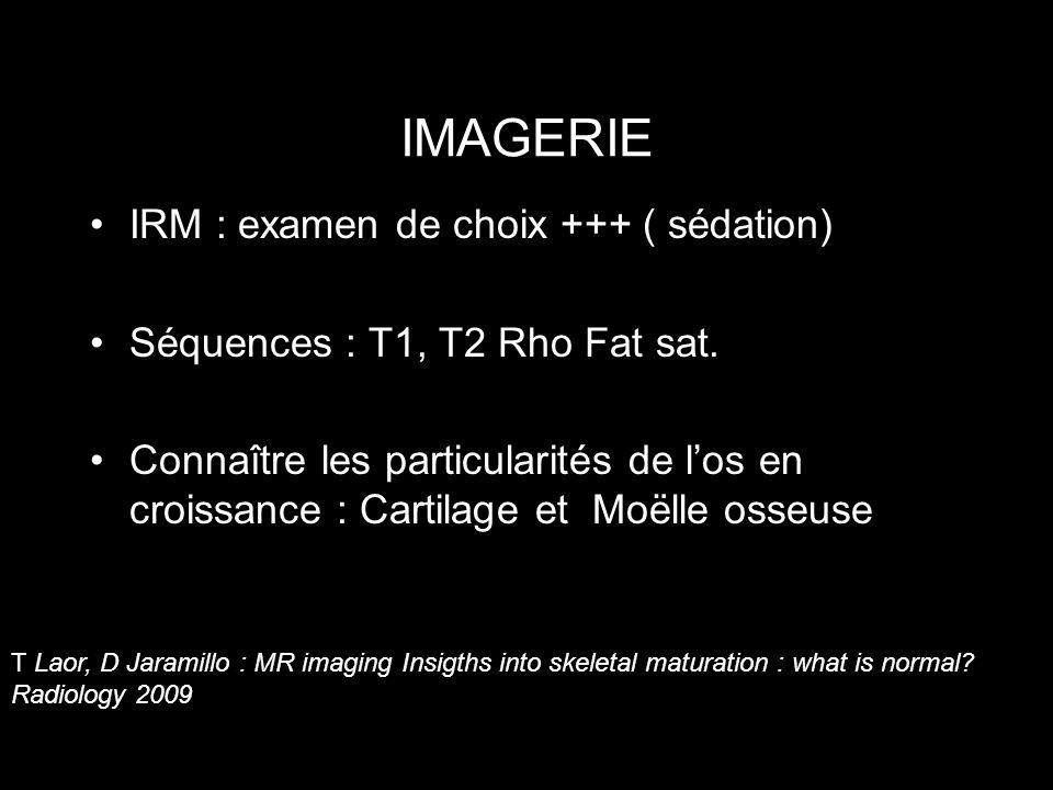 IMAGERIE IRM : examen de choix +++ ( sédation) Séquences : T1, T2 Rho Fat sat. Connaître les particularités de los en croissance : Cartilage et Moëlle