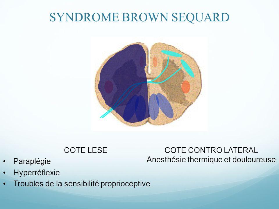 COTE LESE Paraplégie Hyperréflexie Troubles de la sensibilité proprioceptive.