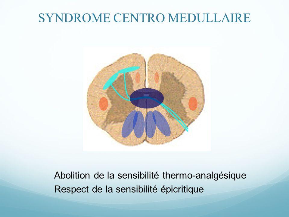 Abolition de la sensibilité thermo-analgésique Respect de la sensibilité épicritique SYNDROME CENTRO MEDULLAIRE
