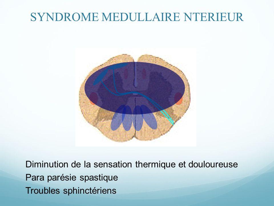 Diminution de la sensation thermique et douloureuse Para parésie spastique Troubles sphinctériens SYNDROME MEDULLAIRE NTERIEUR