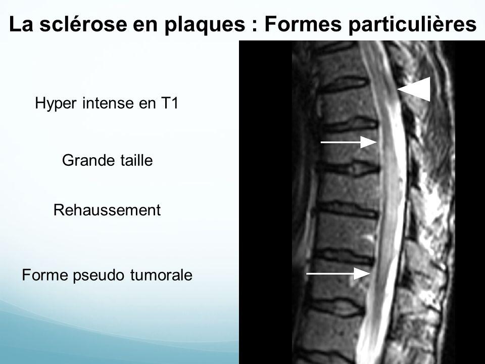La sclérose en plaques : Formes particulières Hyper intense en T1 Grande taille Rehaussement Forme pseudo tumorale