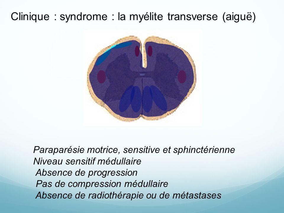 Clinique : syndrome : la myélite transverse (aiguë) Paraparésie motrice, sensitive et sphinctérienne Niveau sensitif médullaire Absence de progression Pas de compression médullaire Absence de radiothérapie ou de métastases