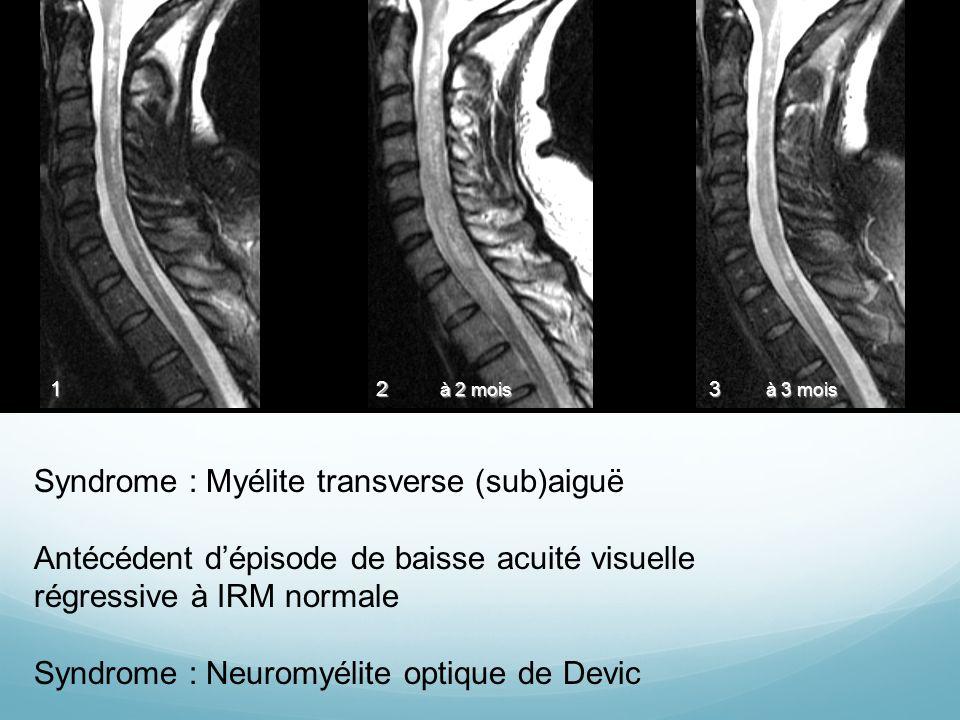 Syndrome : Myélite transverse (sub)aiguë Antécédent dépisode de baisse acuité visuelle régressive à IRM normale Syndrome : Neuromyélite optique de Devic 1 23 à 2 mois à 3 mois