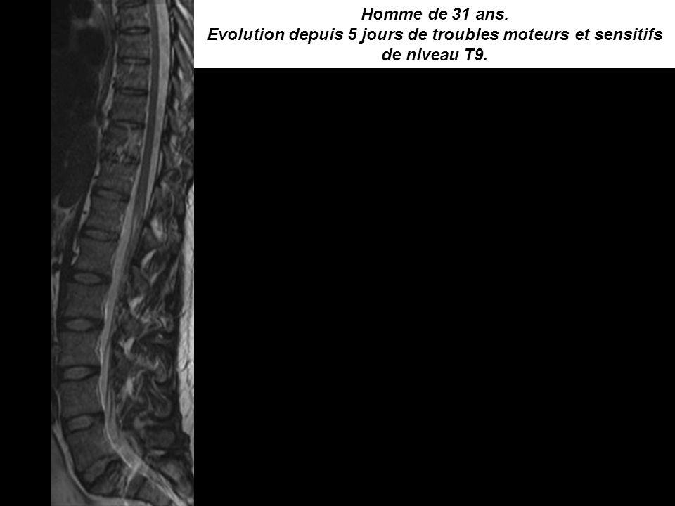 Homme de 31 ans. Evolution depuis 5 jours de troubles moteurs et sensitifs de niveau T9.