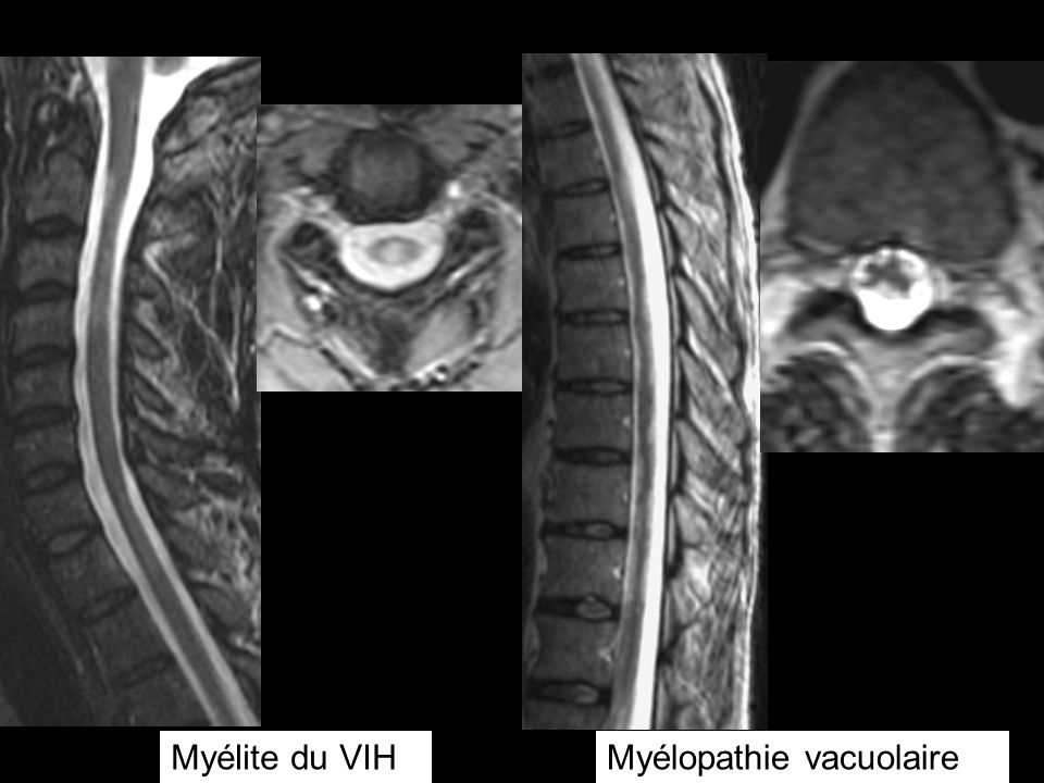 Myélite du VIHMyélopathie vacuolaire