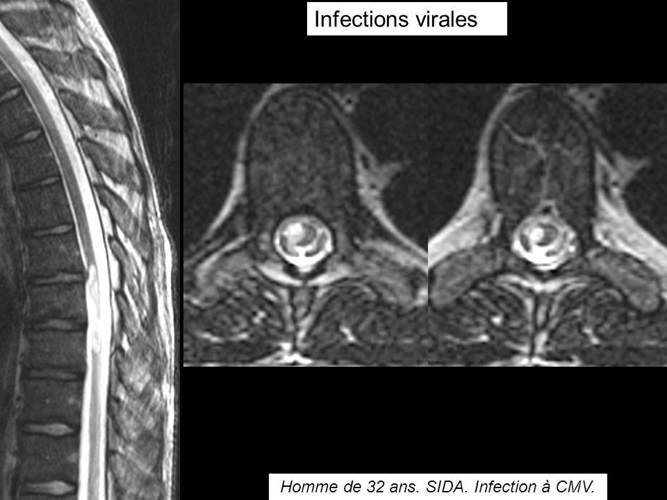 Infections virales Homme de 32 ans. SIDA. Infection à CMV.