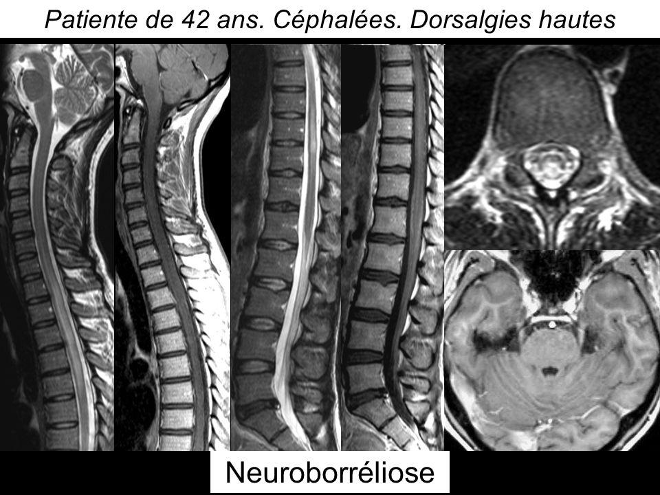Patiente de 42 ans. Céphalées. Dorsalgies hautes Neuroborréliose