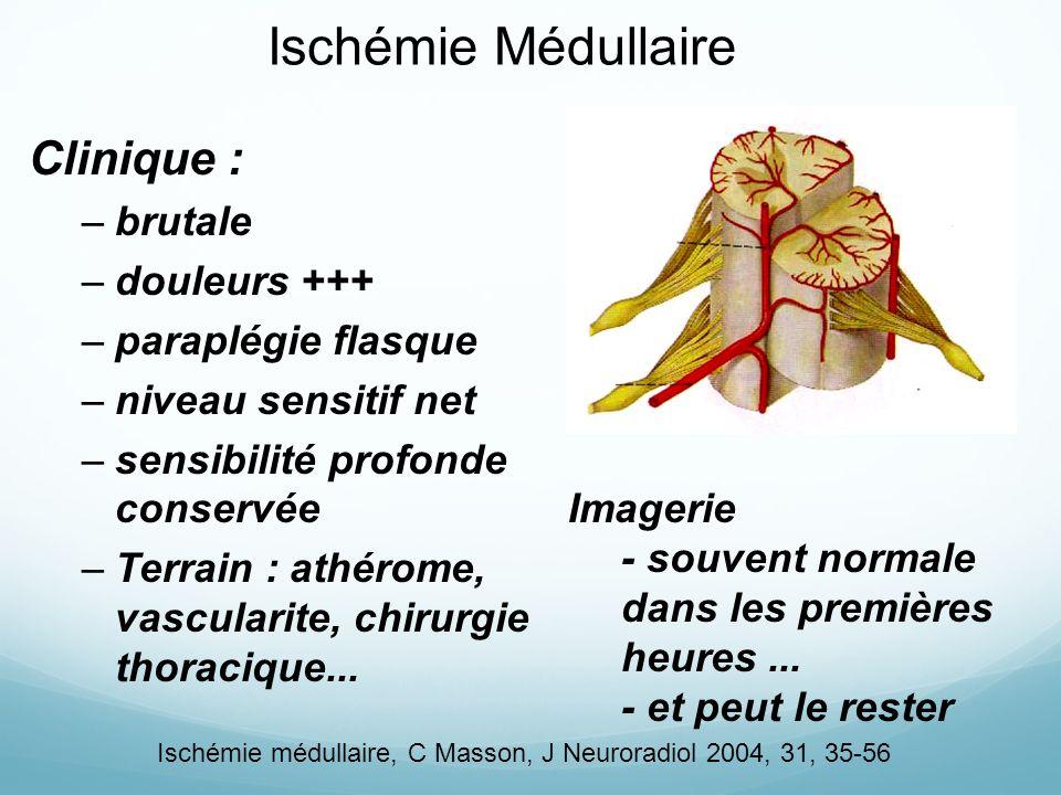 Ischémie Médullaire Clinique : –brutale –douleurs +++ –paraplégie flasque –niveau sensitif net –sensibilité profonde conservée –Terrain : athérome, vascularite, chirurgie thoracique...