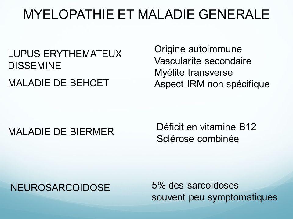MYELOPATHIE ET MALADIE GENERALE LUPUS ERYTHEMATEUX DISSEMINE MALADIE DE BEHCET Origine autoimmune Vascularite secondaire Myélite transverse Aspect IRM non spécifique MALADIE DE BIERMER Déficit en vitamine B12 Sclérose combinée NEUROSARCOIDOSE 5% des sarcoïdoses souvent peu symptomatiques