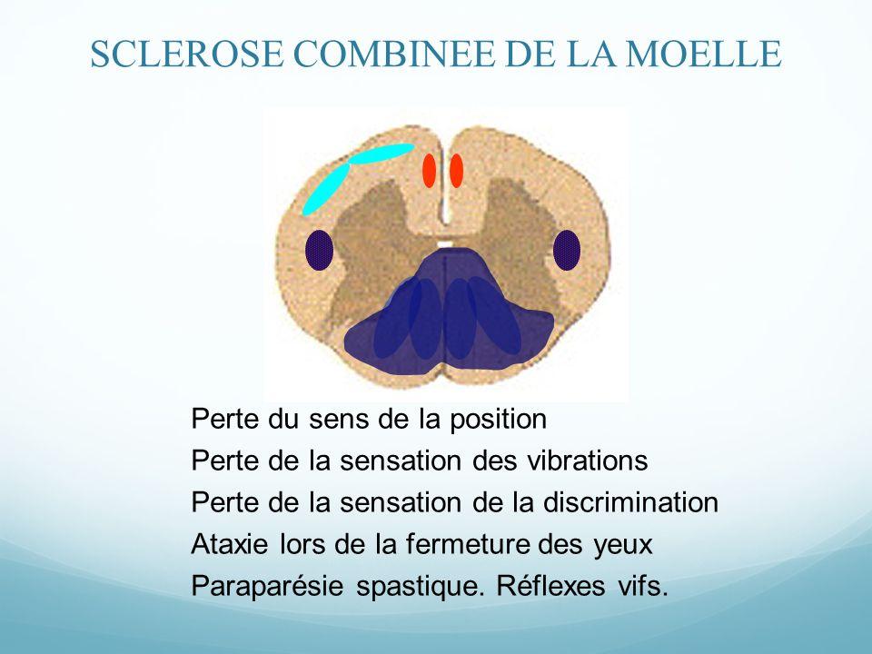 Perte du sens de la position Perte de la sensation des vibrations Perte de la sensation de la discrimination Ataxie lors de la fermeture des yeux Paraparésie spastique.