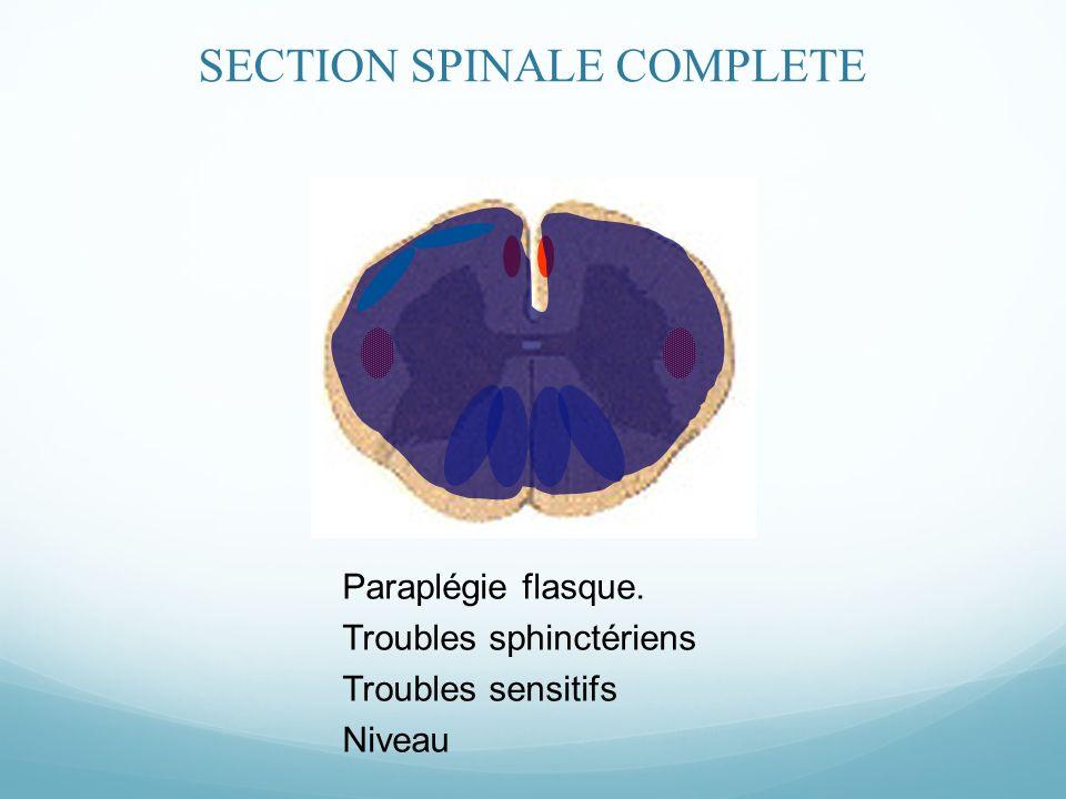 Paraplégie flasque. Troubles sphinctériens Troubles sensitifs Niveau SECTION SPINALE COMPLETE