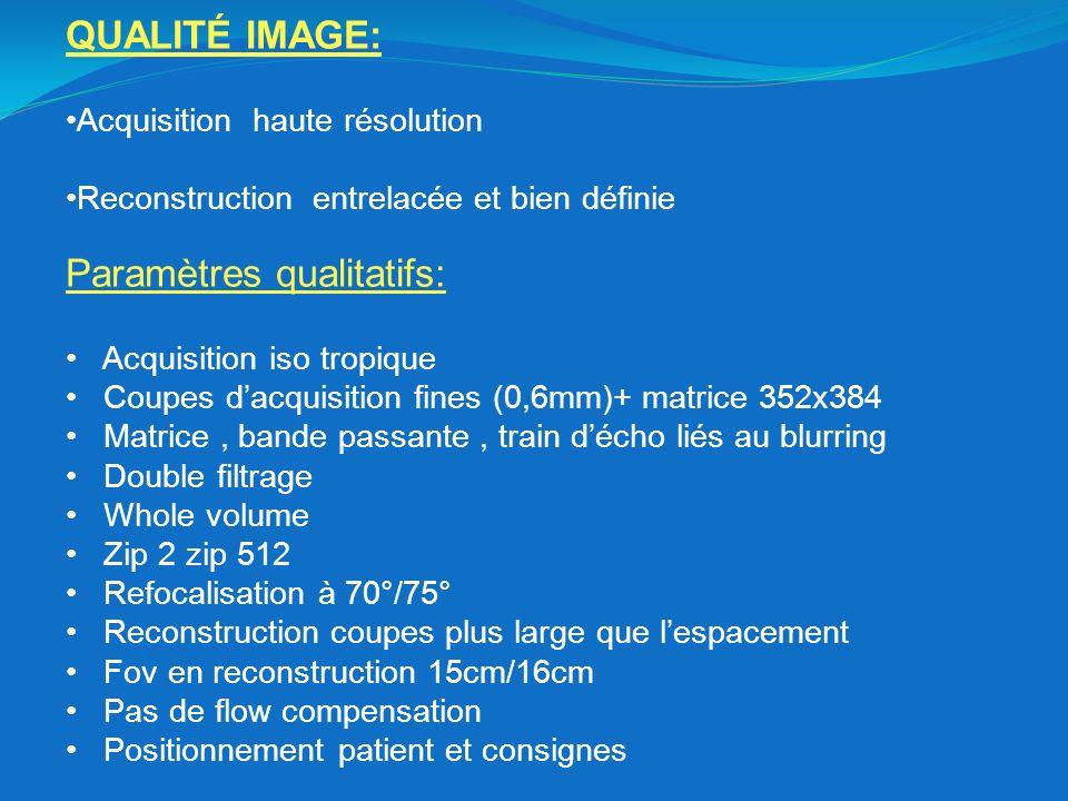 QUALITÉ IMAGE: Acquisition haute résolution Reconstruction entrelacée et bien définie Paramètres qualitatifs: Acquisition iso tropique Coupes dacquisi