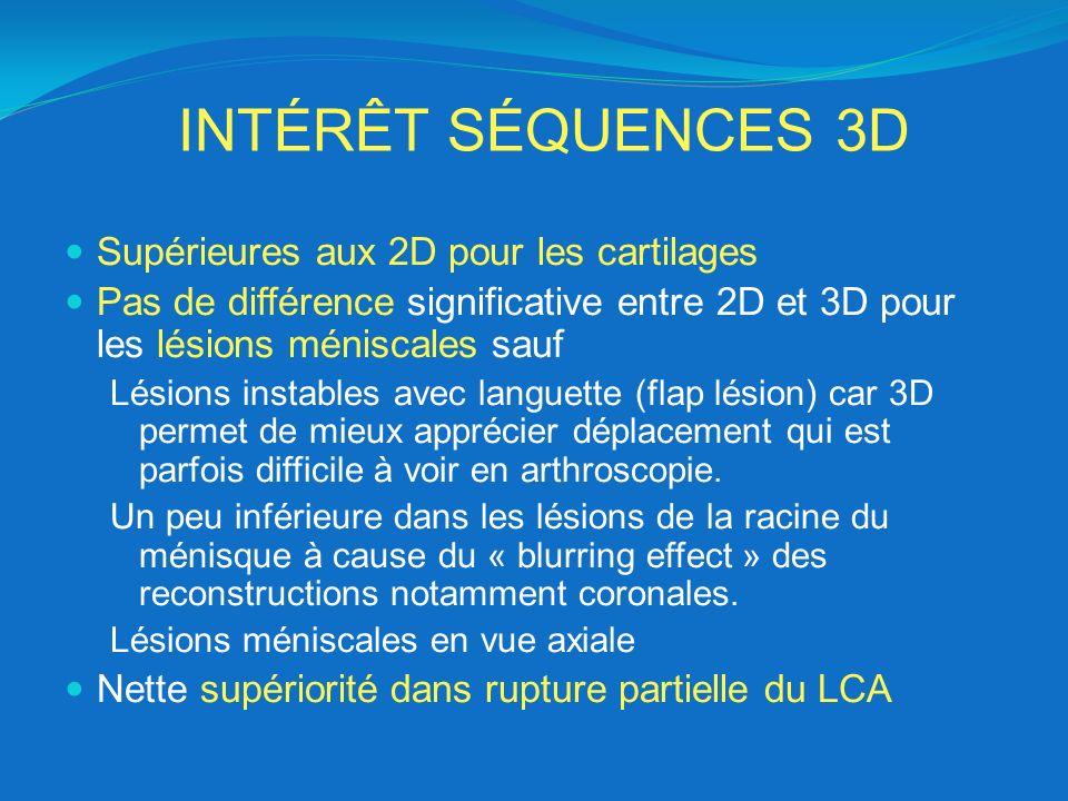 INTÉRÊT SÉQUENCES 3D Supérieures aux 2D pour les cartilages Pas de différence significative entre 2D et 3D pour les lésions méniscales sauf Lésions in