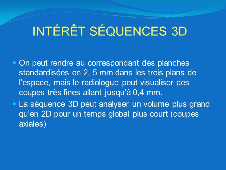 INTÉRÊT SÉQUENCES 3D On peut rendre au correspondant des planches standardisées en 2, 5 mm dans les trois plans de lespace, mais le radiologue peut vi