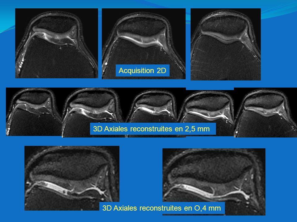 Acquisition 2D 3D Axiales reconstruites en 2,5 mm 3D Axiales reconstruites en O,4 mm