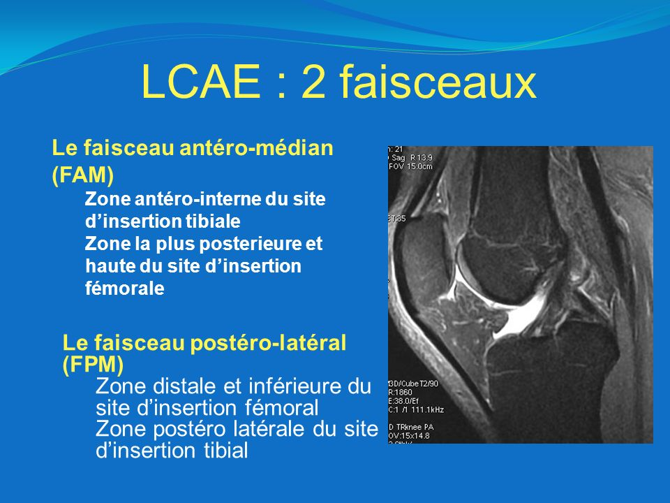 LCAE : 2 faisceaux Le faisceau antéro-médian (FAM) Zone antéro-interne du site dinsertion tibiale Zone la plus posterieure et haute du site dinsertion