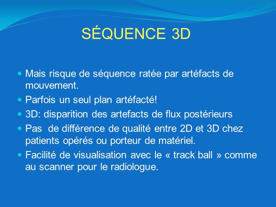 SÉQUENCE 3D Mais risque de séquence ratée par artéfacts de mouvement. Parfois un seul plan artéfacté! 3D: disparition des artefacts de flux postérieur
