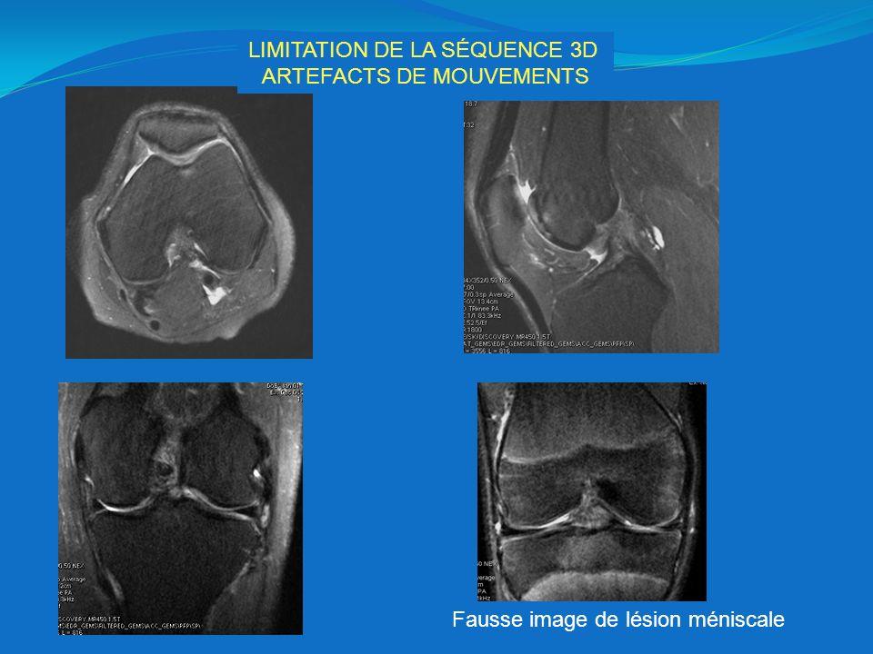 LIMITATION DE LA SÉQUENCE 3D ARTEFACTS DE MOUVEMENTS Fausse image de lésion méniscale
