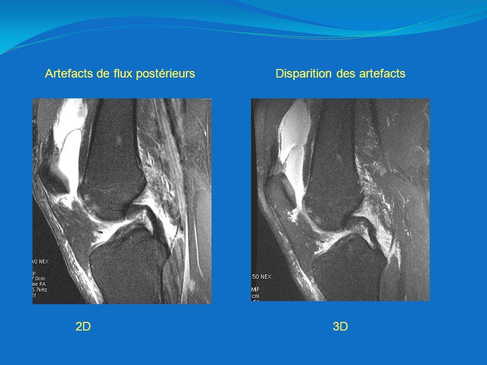 2D3D Artefacts de flux postérieursDisparition des artefacts