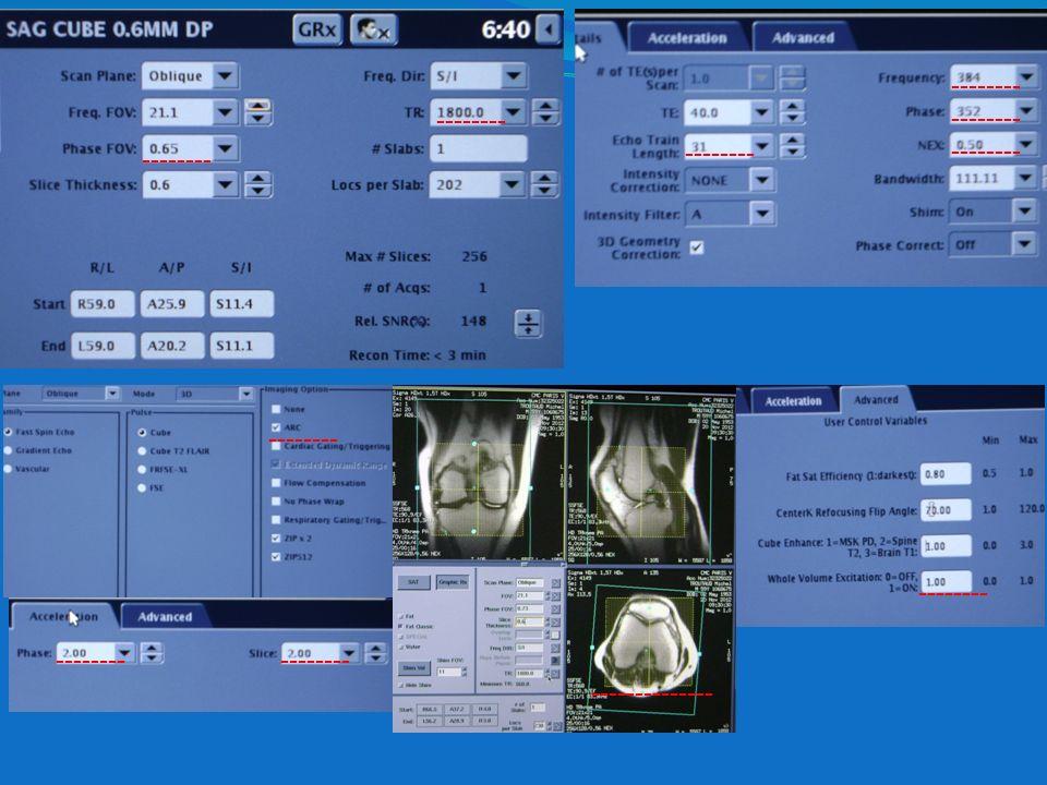 INTÉRÊT SÉQUENCES 3D On peut rendre au correspondant des planches standardisées en 2, 5 mm dans les trois plans de lespace, mais le radiologue peut visualiser des coupes très fines allant jusquà 0,4 mm.