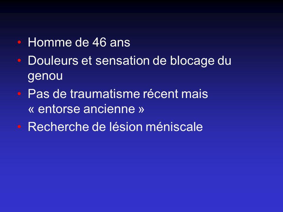 Pas dépanchement Pas de lésion méniscale Pas de lésion cartilagineuse Pas de lésion osseuse Anomalies du LCA Épaissi Hyper signal T1 et T2 Orientation des fibres conservée Kyste