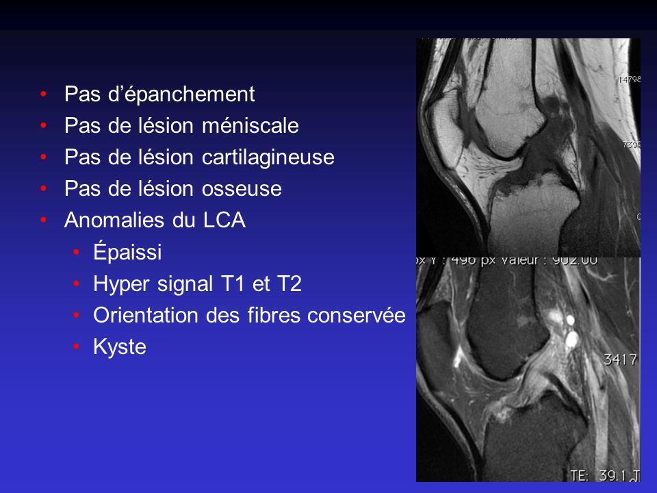 Pas dépanchement Pas de lésion méniscale Pas de lésion cartilagineuse Pas de lésion osseuse Anomalies du LCA Épaissi Hyper signal T1 et T2 Orientation