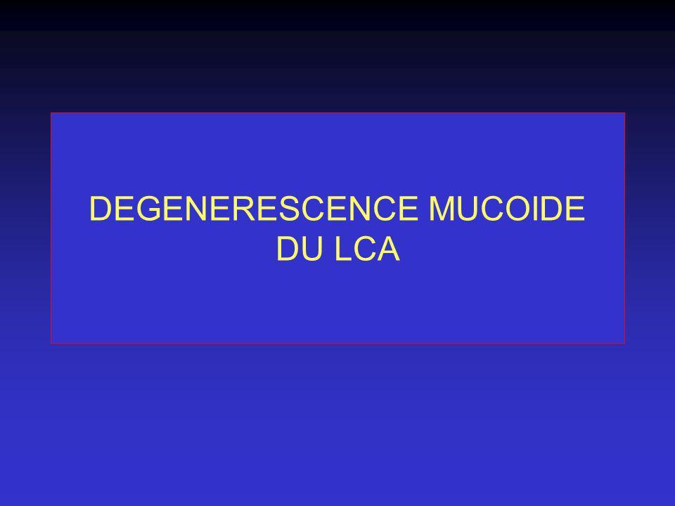 DEGENERESCENCE MUCOIDE DU LCA