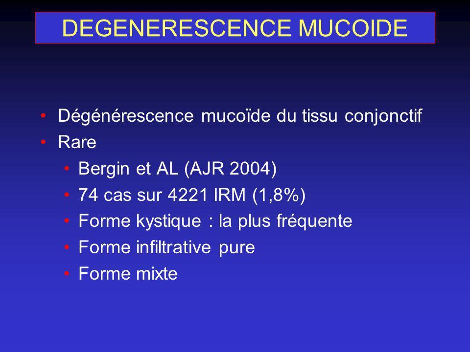 Dégénérescence mucoïde du tissu conjonctif Rare Bergin et AL (AJR 2004) 74 cas sur 4221 IRM (1,8%) Forme kystique : la plus fréquente Forme infiltrati