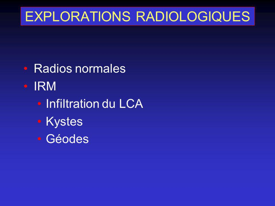 EXPLORATIONS RADIOLOGIQUES Radios normales IRM Infiltration du LCA Kystes Géodes