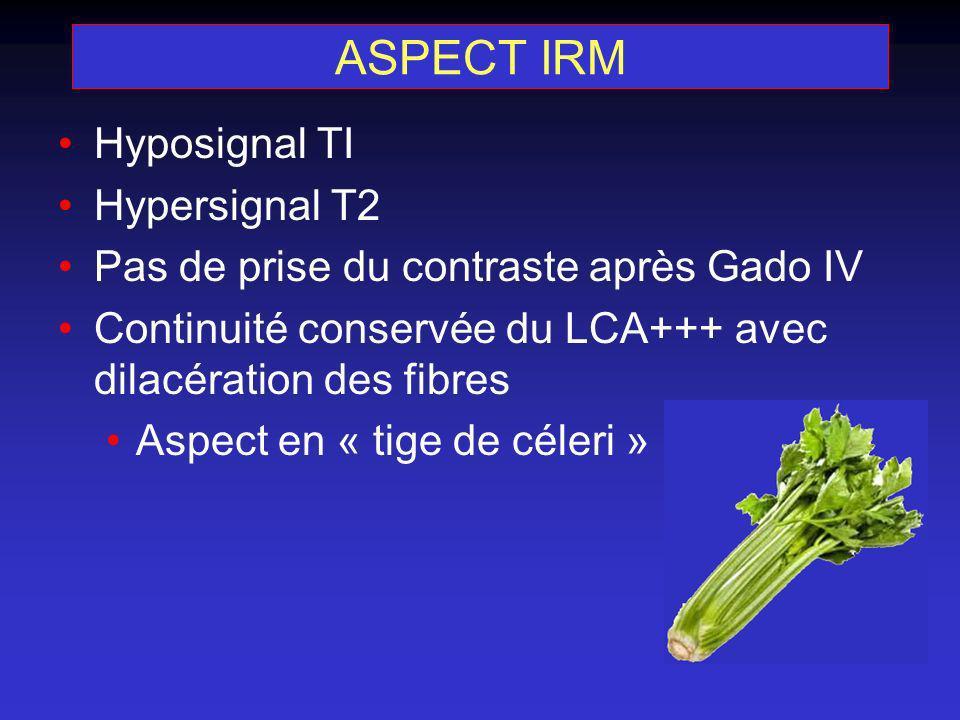 ASPECT IRM Hyposignal TI Hypersignal T2 Pas de prise du contraste après Gado IV Continuité conservée du LCA+++ avec dilacération des fibres Aspect en