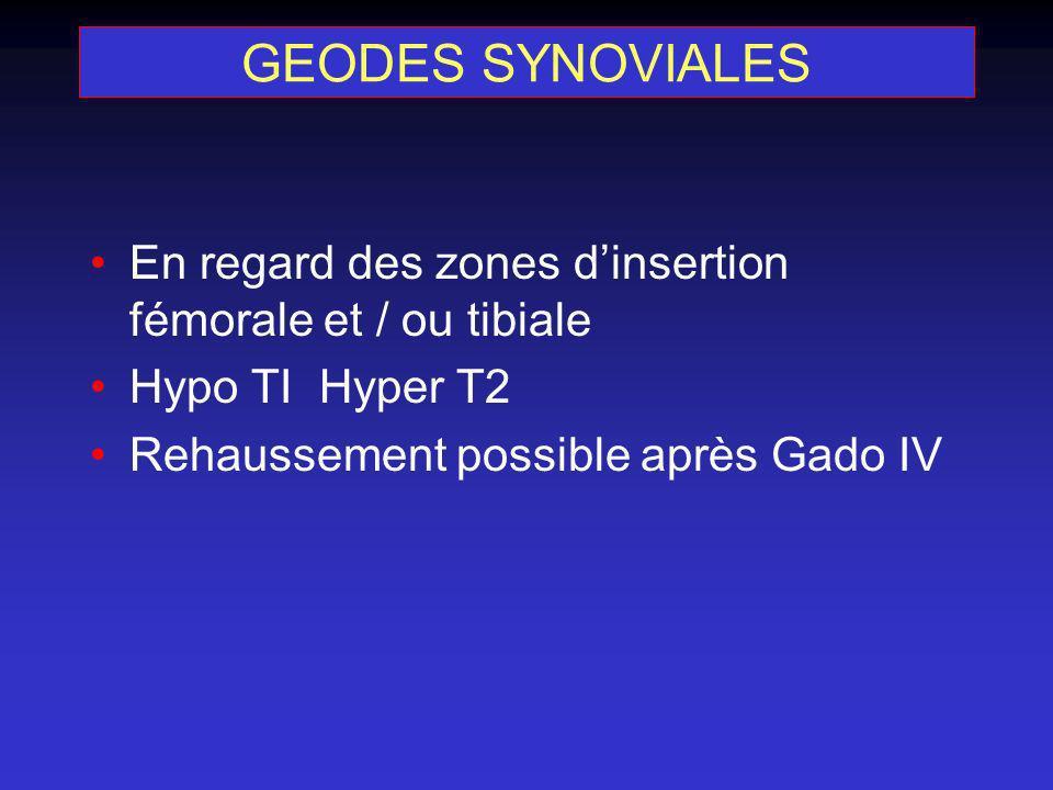 GEODES SYNOVIALES En regard des zones dinsertion fémorale et / ou tibiale Hypo TI Hyper T2 Rehaussement possible après Gado IV
