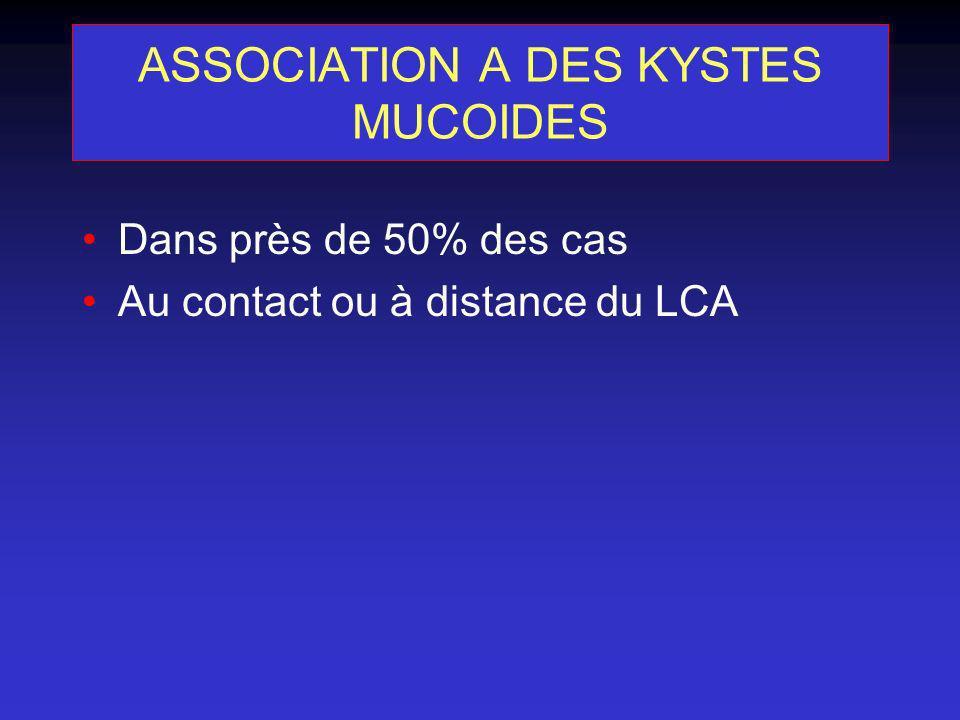 ASSOCIATION A DES KYSTES MUCOIDES Dans près de 50% des cas Au contact ou à distance du LCA
