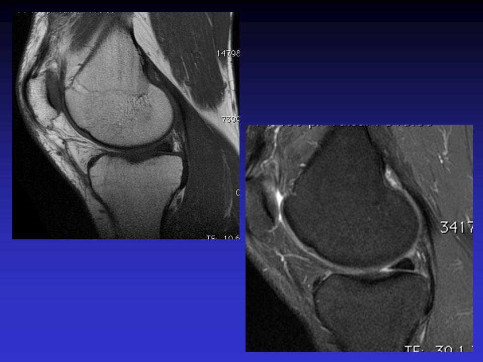 ASPECT IRM Hyposignal TI Hypersignal T2 Pas de prise du contraste après Gado IV Continuité conservée du LCA+++ avec dilacération des fibres Aspect en « tige de céleri »