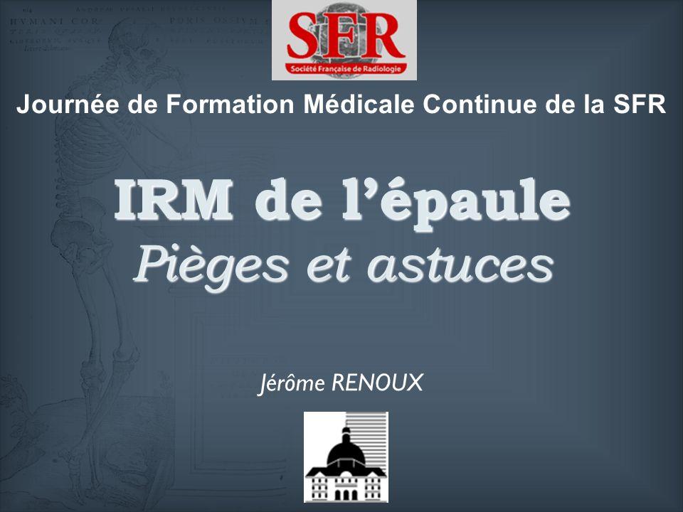IRM de lépaule Pièges et astuces Jérôme RENOUX Journée de Formation Médicale Continue de la SFR