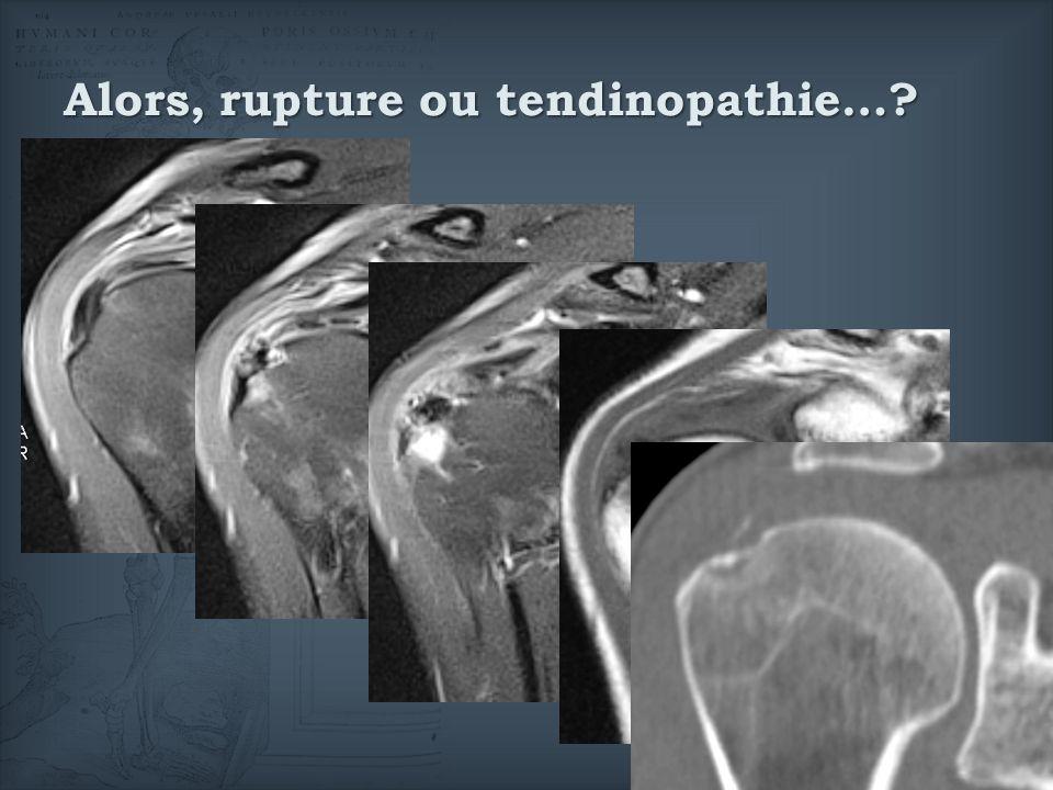 Alors, rupture ou tendinopathie…?
