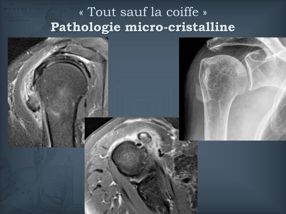 Pathologie micro-cristalline « Tout sauf la coiffe » Pathologie micro-cristalline