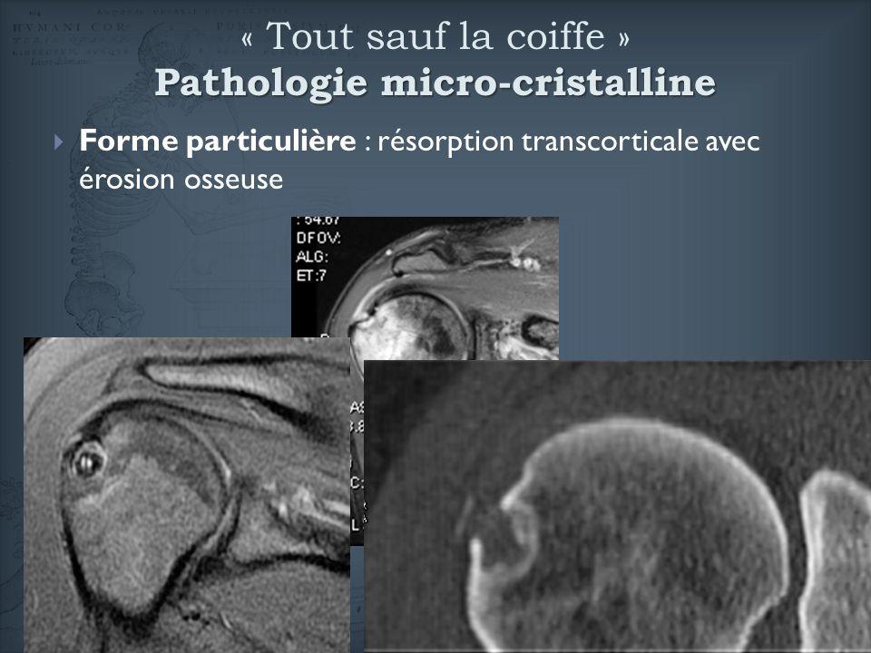 Forme particulière : résorption transcorticale avec érosion osseuse