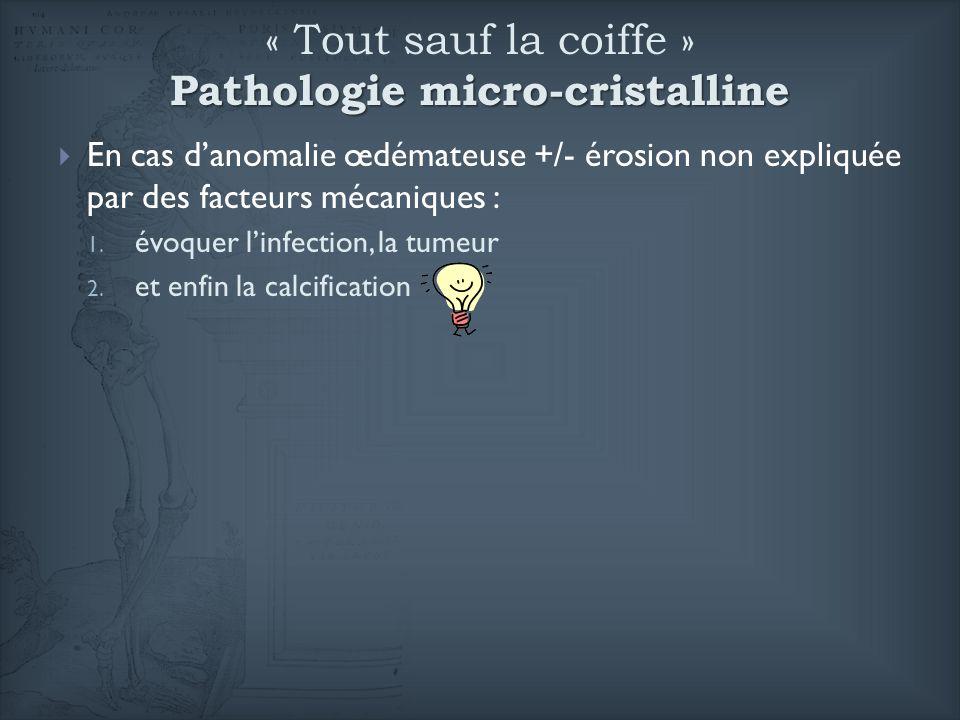 Pathologie micro-cristalline « Tout sauf la coiffe » Pathologie micro-cristalline En cas danomalie œdémateuse +/- érosion non expliquée par des facteu